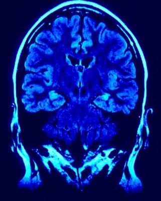 Meditación y neuroplasticidad.
